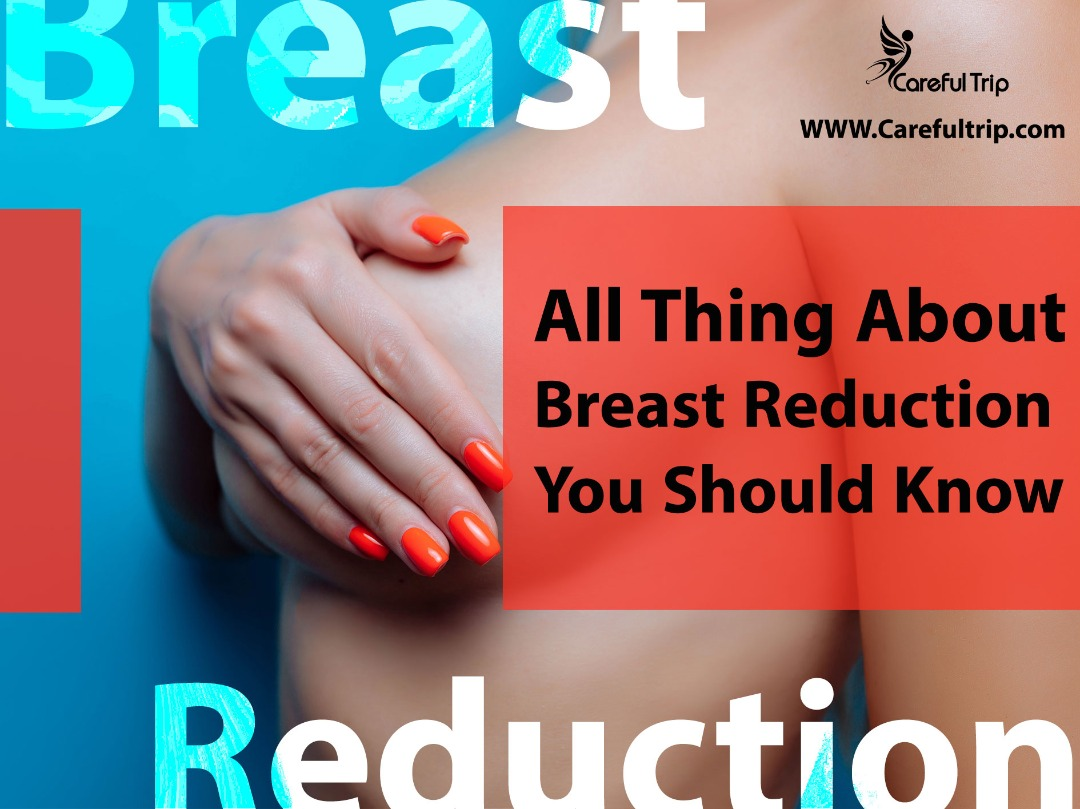 All Thing About Breast Reduction You Should Know
